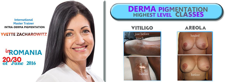 derma_pigmentation